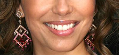 À quelle star appartient ce sourire ?