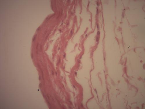 Qual o tecido epitelial de revestimento presente na imagem ?