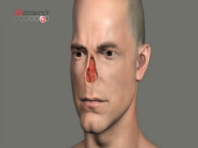 En janvier 2013, afin de reconstruire le nez d'un homme amputé, des scientifiques britanniques ont reconstruit cet organe…