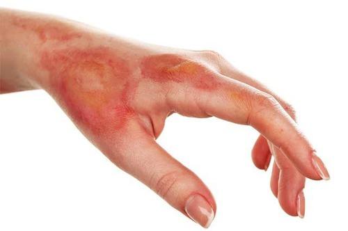 Sobre queimaduras: Como identificar uma queimadura de 1°grau ?