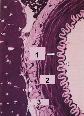 A figura mostra um corte transversal de uma artéria de pequeno calibre. Quais são as estruturas indicadas nos números 1, 2 e 3, respectivamente?