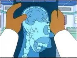 Quel objet s'est-il coincé dans son cerveau lorsqu'il était petit ?