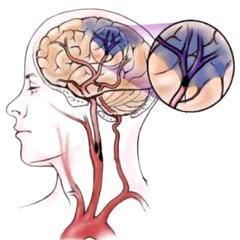 Quiz Accidents vasculaires cérébraux AVC - Santé, Anatomie